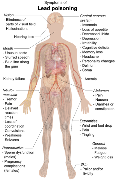 Cross-section drawing of the human body with symptoms of lead poisoning linked to various areas of the body.